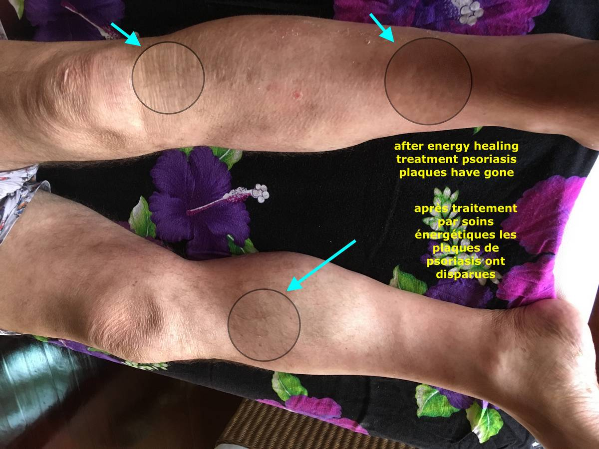 Psoriasis - Energetic Healing Center in Phuket 02