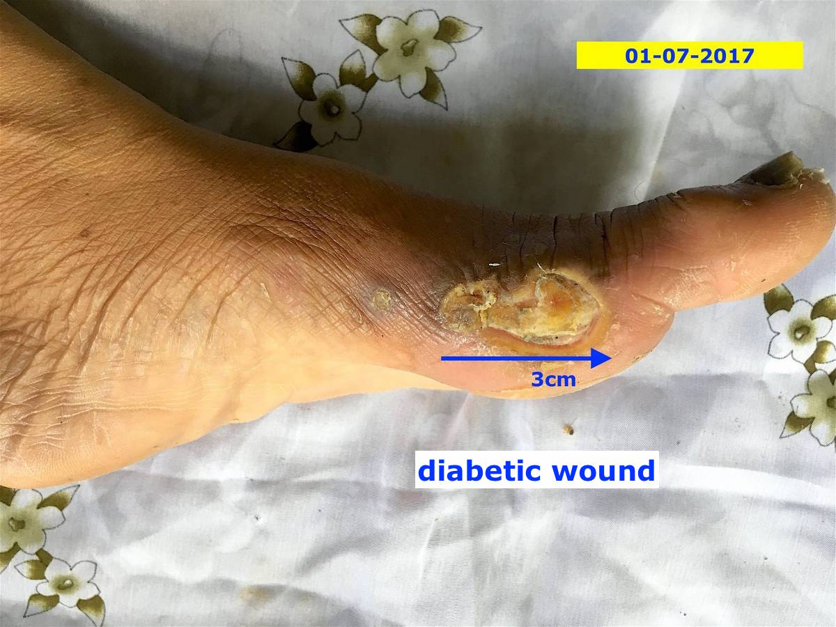 Diabetic wounds – Energetic Healing Center in Phuket 01