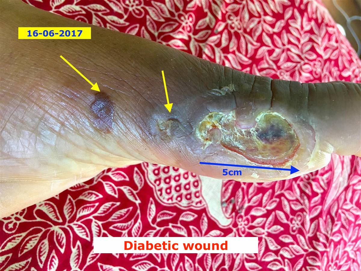 Diabetic wounds - Energetic Healing Center in Phuket 01